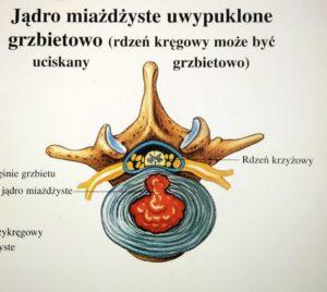 Wypuklina jądra miażdżystego