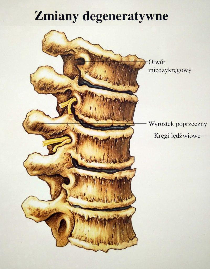 Kręgosłup ze zmianami zwyrodnieniowymi trzonów kręgów